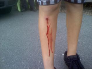 Boy's bloody leg