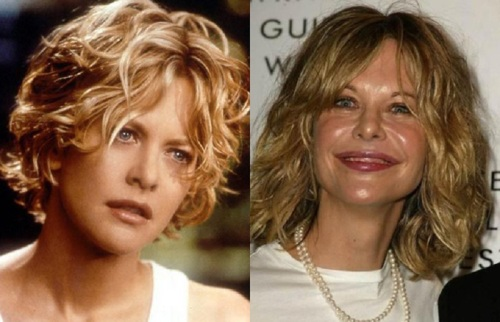 Meg-Ryan before after